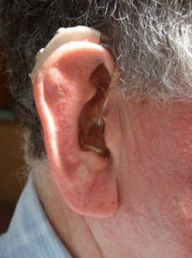 Hearing loss can increase dementia risk